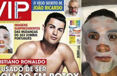 Ronaldo, acuzat că mânuiește mai bine injecțiile cu botox decât mingea